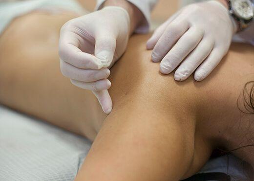 Иглорефлексотерапия при лечении суставов в клинике