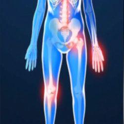 Артрит суставов — диагностика и лечение