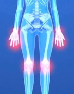 Воспаление суставов