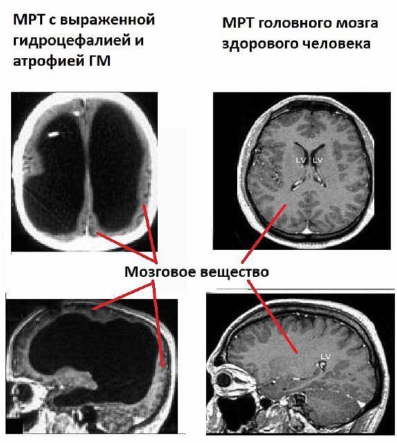 МРТ головного мозга здорового человека