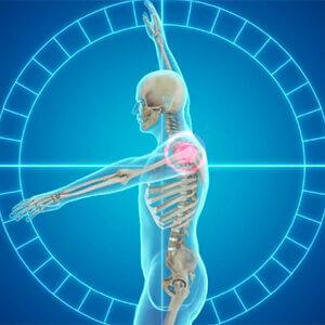 Схема боли в плечевом суставе