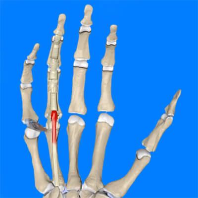 Воспаление в суставе пальца рука