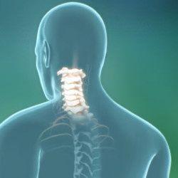 Шейный остеохондроз – профилактика, диагностика и лечение