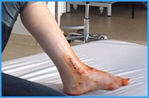 Гнойный артрит голеностопа
