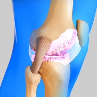 Воспалённый коленный сустав