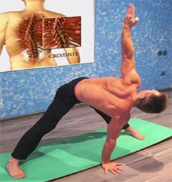 Упражнения при профилактике сколиоза