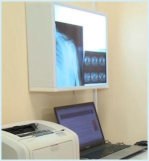 Изучение рентген снимков в клинике «ТитАн»