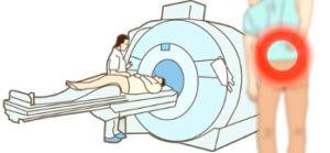 МРТ при диагностике грыжи позвоночника