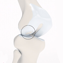 Остеоартроз сустава