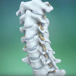 Остеохондроз — причины, симптомы и лечение