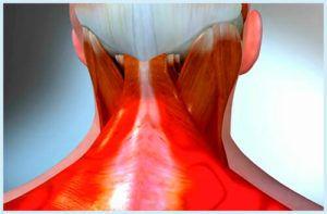 Воспаление при шейном остеохондрозе