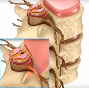 Зоны поражения остеохондрозом