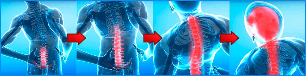 Стадии поражения остеохондрозом