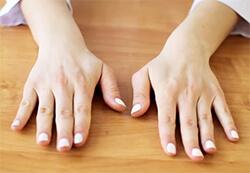 Здоровые пальцы рук