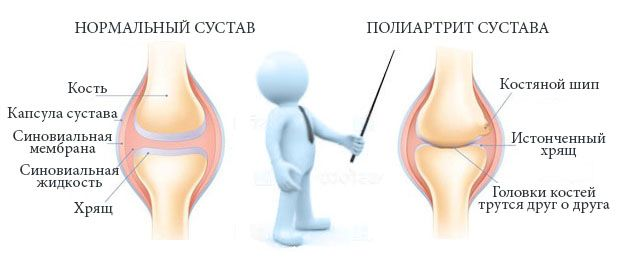 Характеристика полиартрита сустава