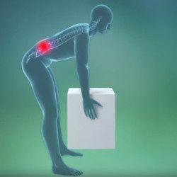 Радикулит — причины, симптомы и лечение