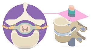 Схема спинного мозга
