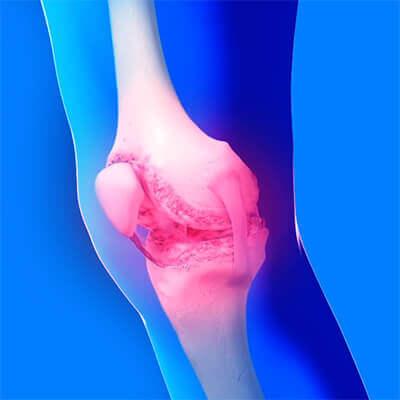 Воспалённый сустав ноги