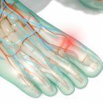 Подагра – причины, симптомы и лечение