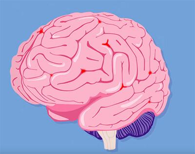 Мозг при нарушении мозгового кровообращения
