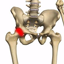 Лечение тазобедренного сустава